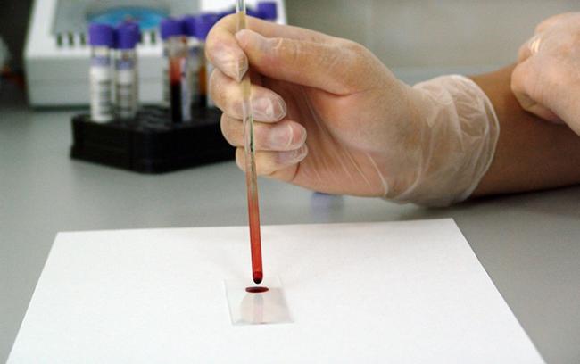 test sangue provetta